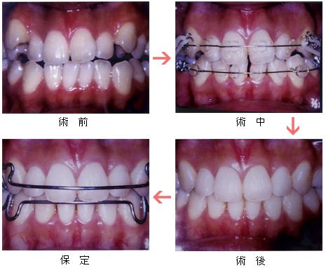歯列矯正の経過